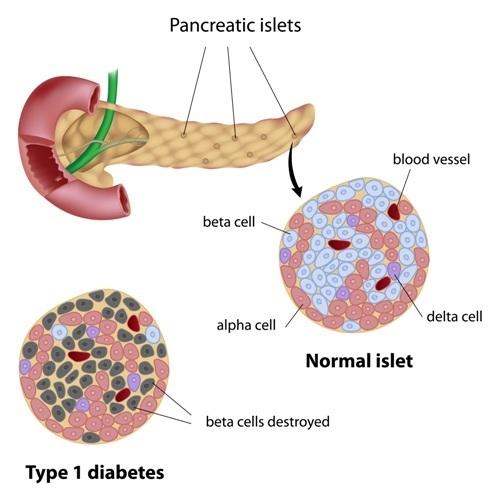 Pancreatic cancer fasting Oana Radu Jurnal Video - Cum am slabit peste 60 de kg ? dysbiosis fasting