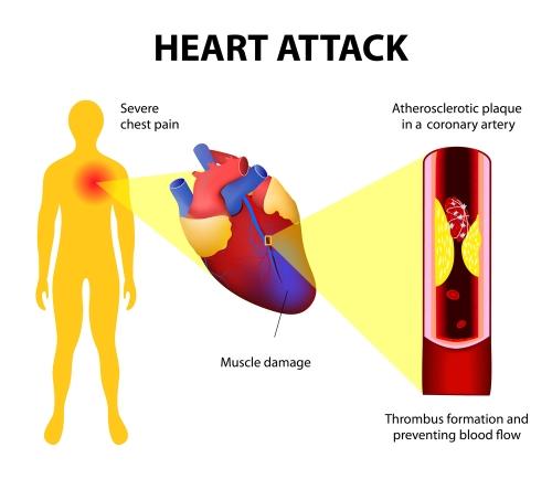 foods to avoid coronary heart disease