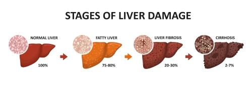liver disease, hepatic steatosis, NASH